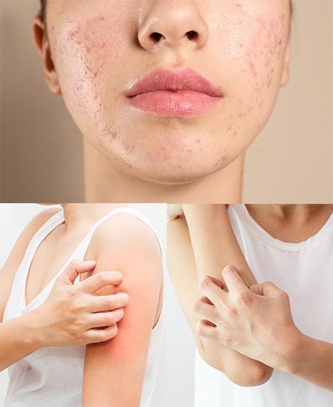 MB-banner-你也是敏感肌嗎?換季常見的肌膚問題一次搞懂.jpg